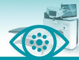 Laser/Refractive Surgery